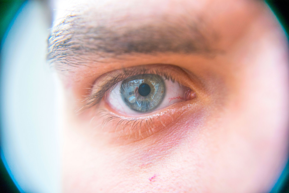 Window To The Soul – Barry